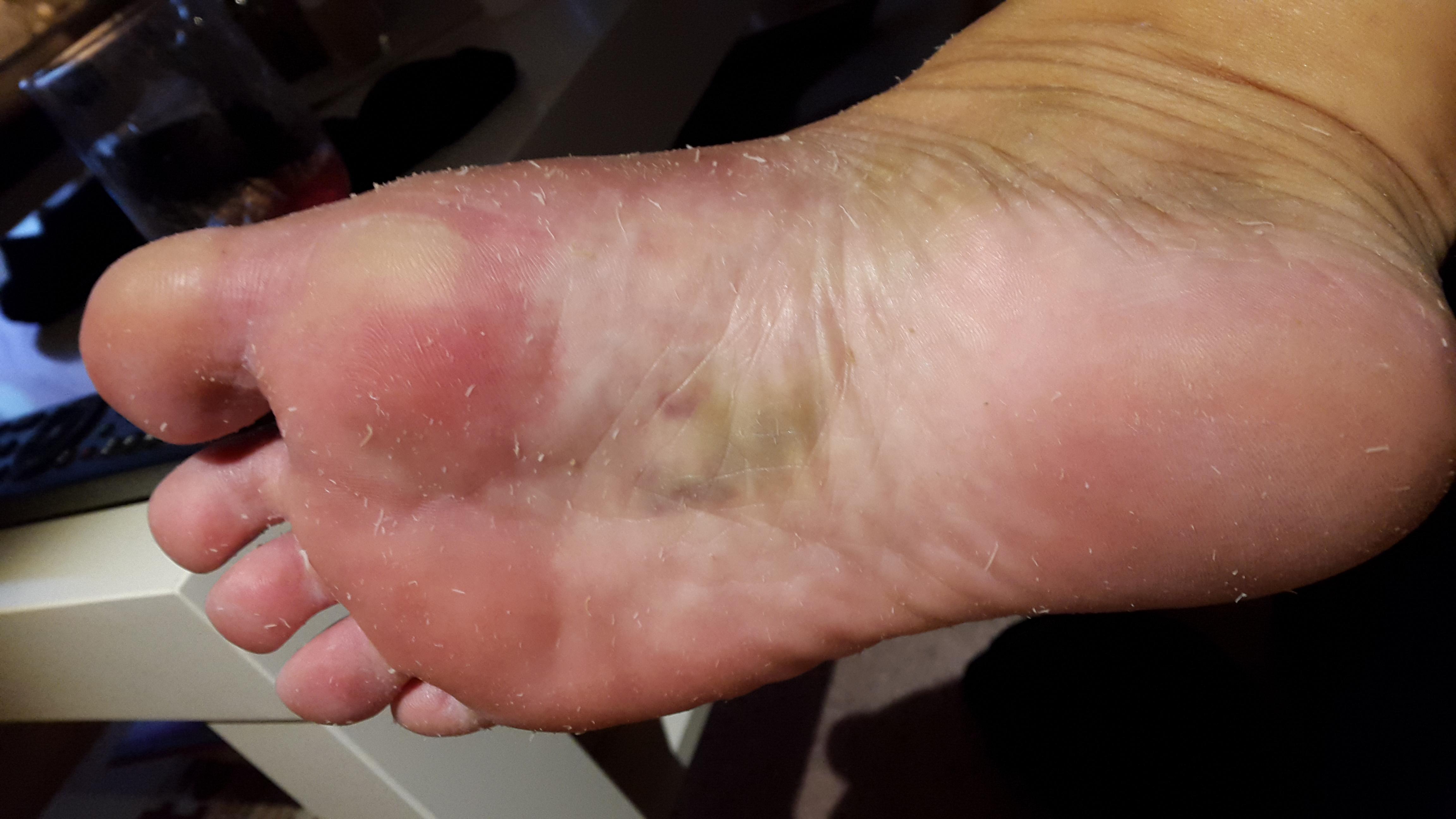 knöl under foten